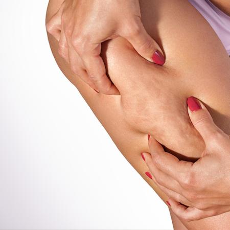 i-migliori-trattamenti-contro-cellulite-dermoclinico-800x450-1